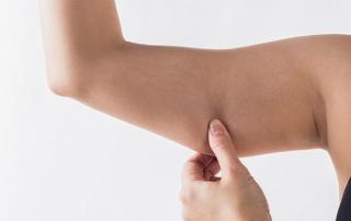 لاغری بازو